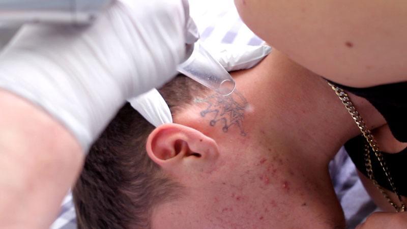 Laser tatto removal