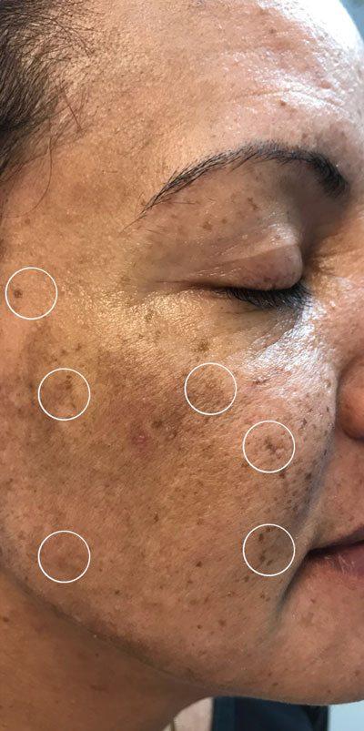 disorder-of-hyperpigmentation